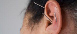 Bei der Ohrakupunktur werden Organe und Systeme über Reflexzonen aktiviert.